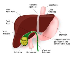 pierderea în greutate reflux biliar pierde in greutate grasimi scazute