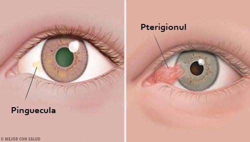 problema vederii oculare