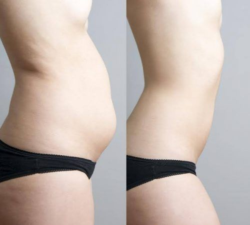 cum să pierzi grăsimea în curând pierdeți în greutate