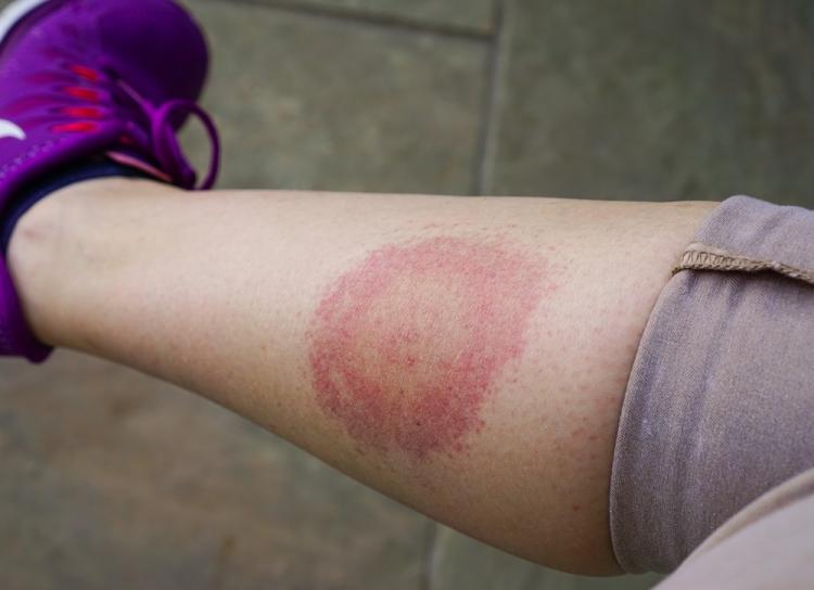 Boala Lyme simptome si tratament