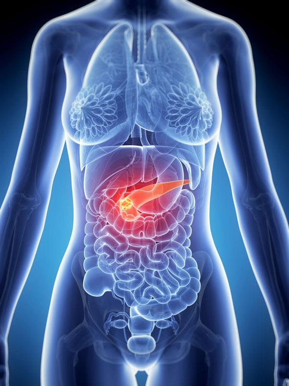 cum să slăbești cu pancreatita cum să pierzi grăsimea din spate mai mică