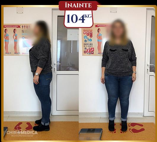 timonium ideal de pierdere în greutate esențiale usana pot slăbi