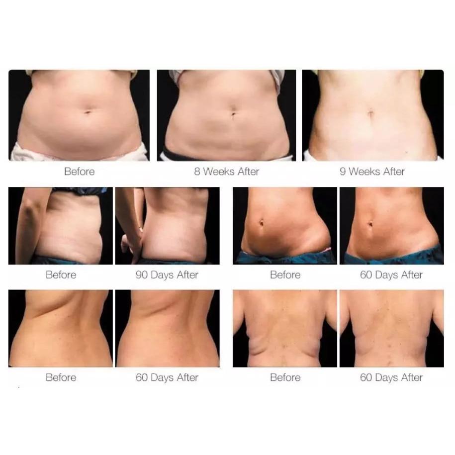 pierderea în greutate grăsime corporală