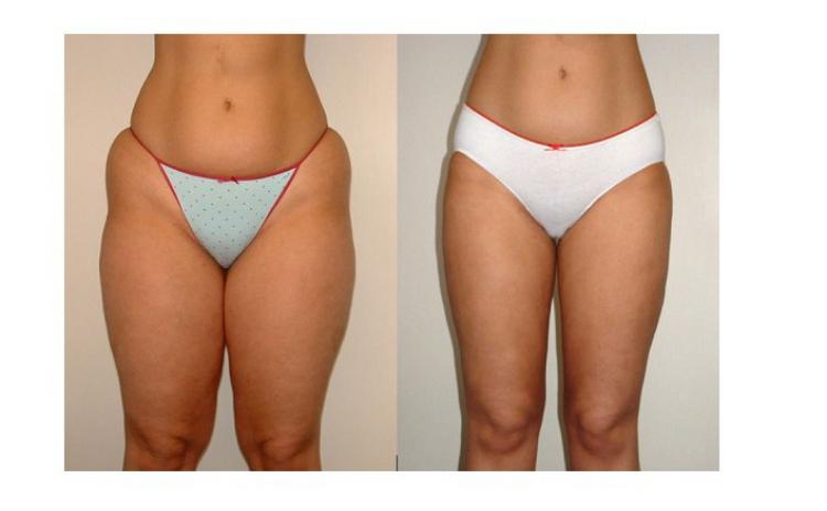 ajutați la pierderea în greutate pierdere în greutate culpeper va