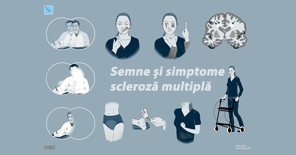scleroză multiplă pierdere în greutate anemic cum să slăbești