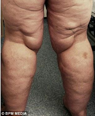 puteți slăbi cu lipedema epping centru de pierdere în greutate